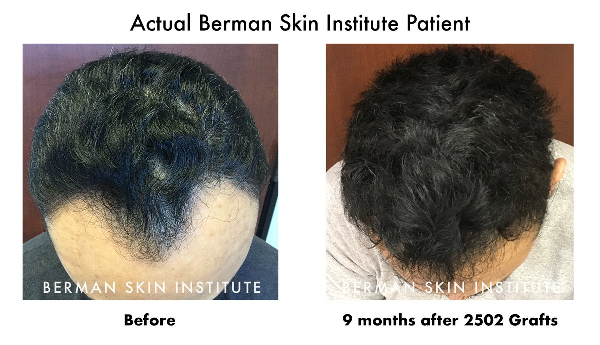 9 Months 2502 Grafts Hair Transplant Results Before and After