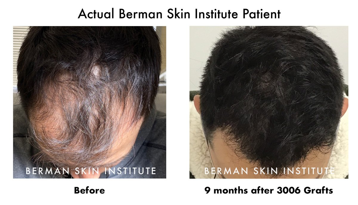 9 Months 3006 Grafts Hair Transplant Results Before and After
